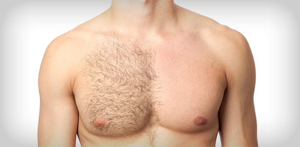 Men Can Get Laser Hair Removal, Too