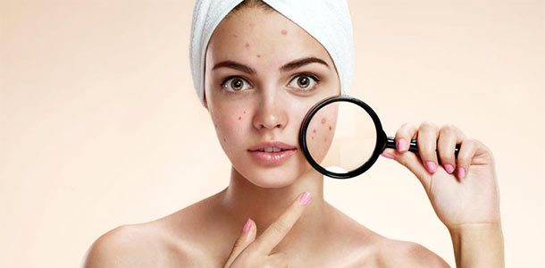 Do You Know What Is Triggering Your Acne?