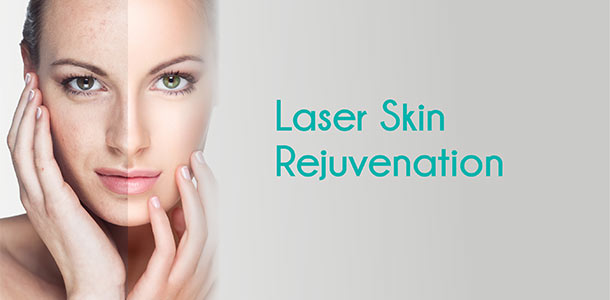 Combat Your Aging Skin: Why Laser Rejuvenation is Key