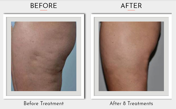 Sharp Light Cellulite Reduction Before After Photo 1