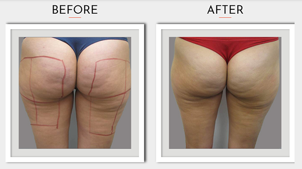 Sharp Light Cellulite Reduction Before After Photo 2