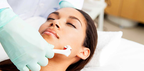 The Guide to Microneedling for the Average Newbie