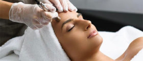 Microdermabrasion Aftercar...
