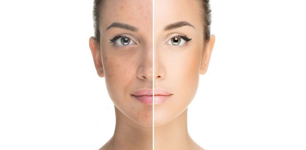 The Benefits of Laser Skin Treatment