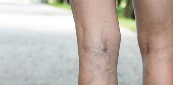 All You Need To Know About Laser Vein Removal